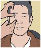 Vurdering Av Kontaktlinser Panel
